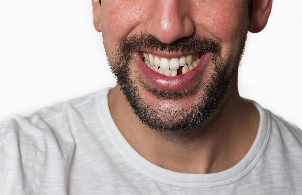 Why it's Essential to Replace Missing Teeth