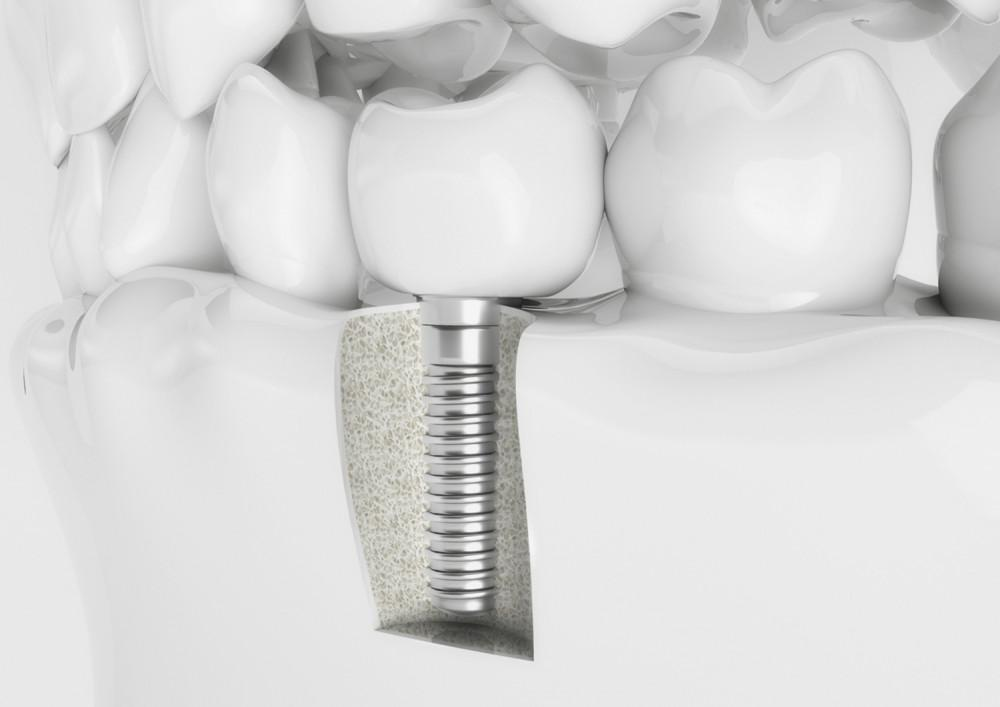 Is Getting a Dental Implant Painful?