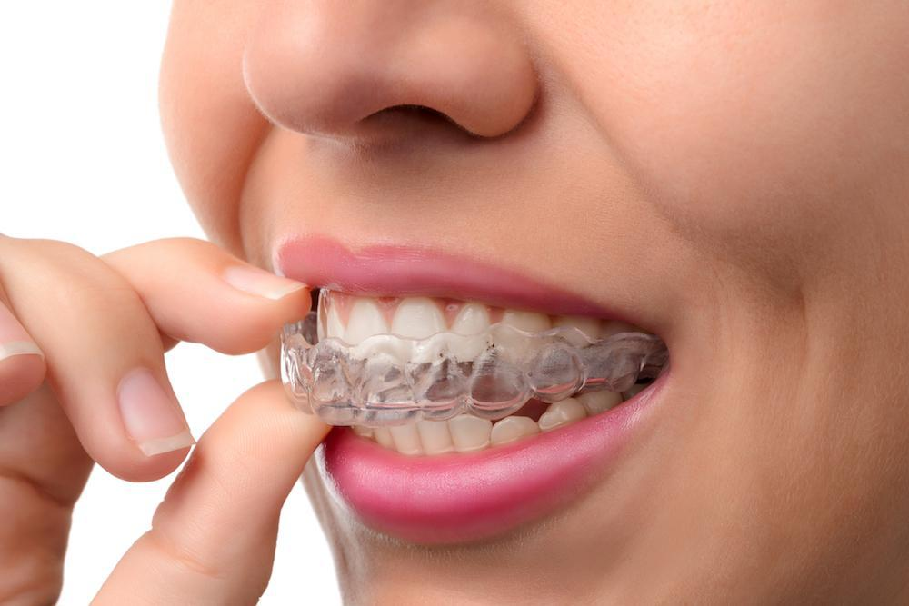 Get Straight Teeth at Any Age With Invisalign Clear Aligners